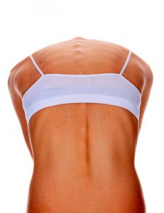 Tanned female back with numerous moles, isolated on white background