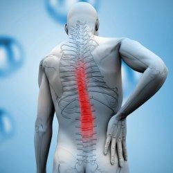 Spondylosis Et Spondylarthrosis Lumbalis